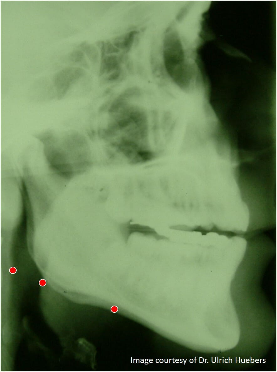 Mandibular Advancement Device (MAD) with NO vertical opening in protrusion