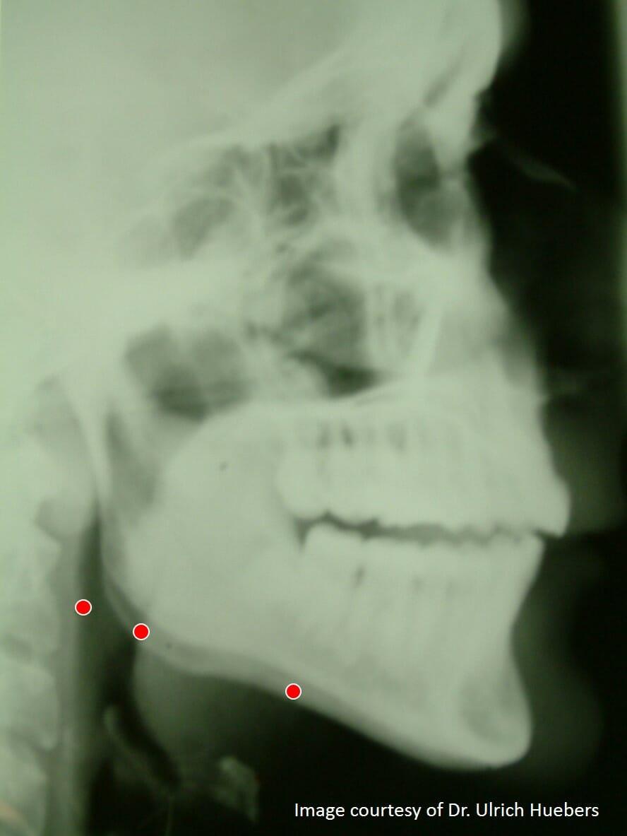 rest position before a mandibular advancement device