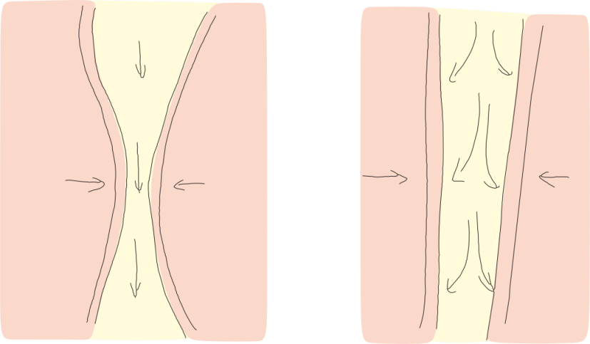Figure 1: How PAP air pressure 'splints' open a narrowing airway