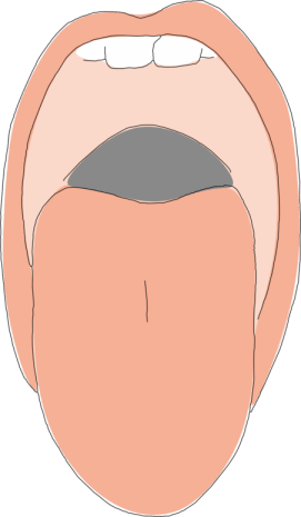 Uvulopalatopharyngoplasty (UPPP) surgery for snoring