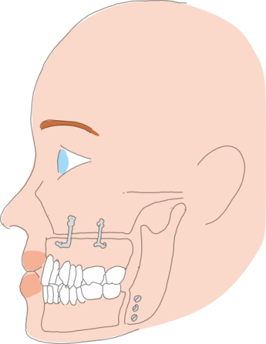 Bi-maxillary osteotomy for sleep apnoea