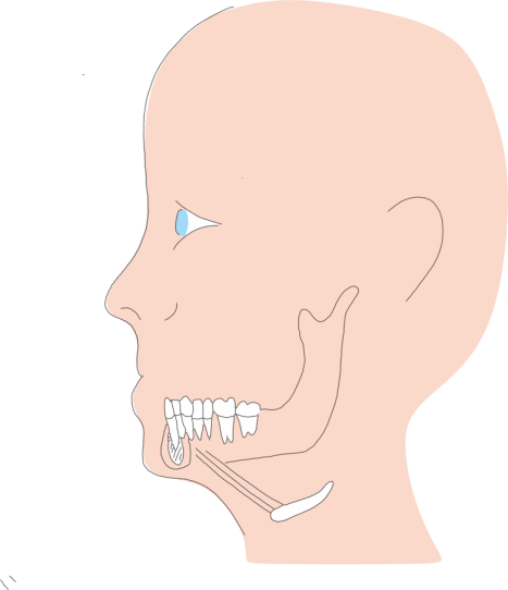 Hyoid-suspension-for-sleep-apnoea
