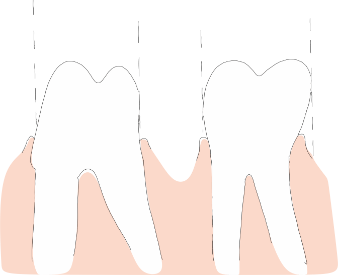 Non-retentive teeth will not hold an MAD in place