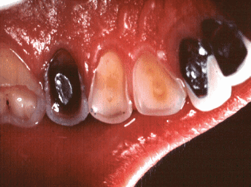 Incisor damage from stomach acid - perhaps from gastro-oesophageal reflux
