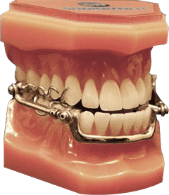 Mandibular Advancement Device (MAD) made from metal