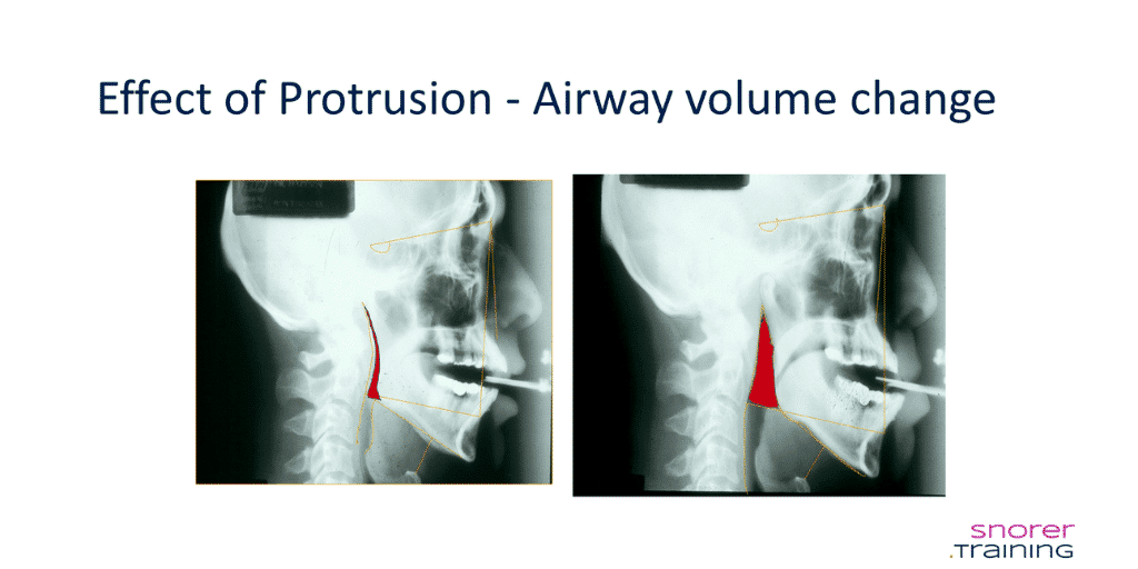 chin straps and airway volume