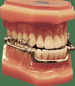 Example dental appliance for sleep apnoea